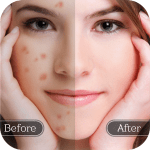 Face Blemish Remover – Smooth Skin & Beautify Face 1.3 APK